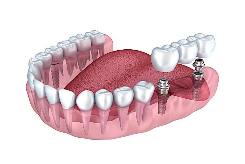 Multiple Tooth Dental Implants Process In Birmingham Alabama