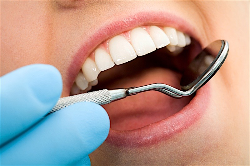 Get Dental Cleaning and Avoid Problems in Birmingham Alabama
