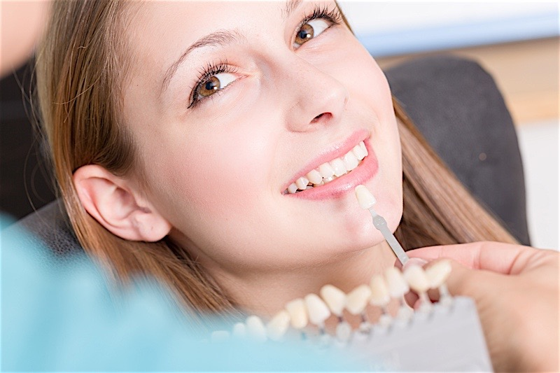 Understand Dental Implants - Types Available in Birmingham Alabama