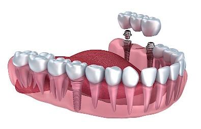 Dental Implants Cost Birmingham Alabama
