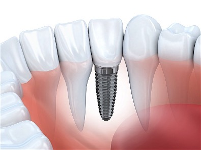 Dental Implant Cost in Birmingham AL