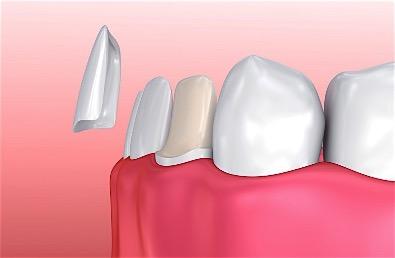 Dental Veneer Placment In Birmingham Alabama